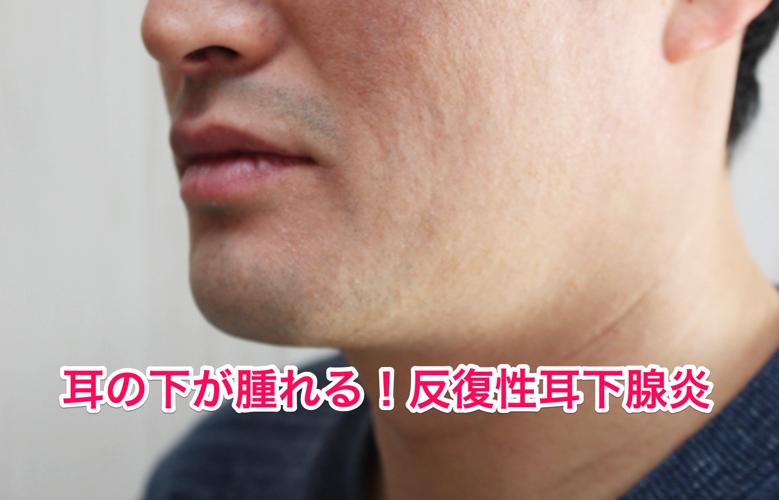 反復性耳下腺炎
